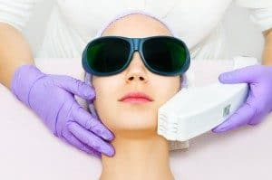 Laser hair removal candidates