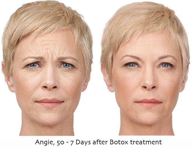 botox-treatment