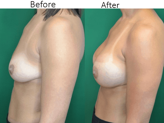 Breast Augmentation in Ashburn Va , Fairfax Va , One Loudoun