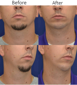 Facial Implants in Northern Va , Ashburn Va , Fairfax County , Loudoun County , One Loudoun
