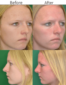 Rhinoplasty in Northern Va , Ashburn Va , Fairfax County , Loudoun County , One Loudoun