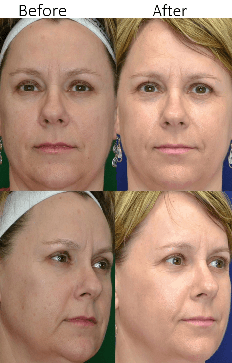 Laser Resurfacing in Northern Va , Ashburn Va , Fairfax County , Loudoun County , One Loudoun
