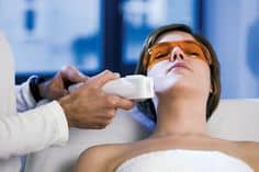 LASER RESURFACING IN NORTHERN VA