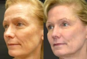 before and after pictures of profractional laser in northern virginia