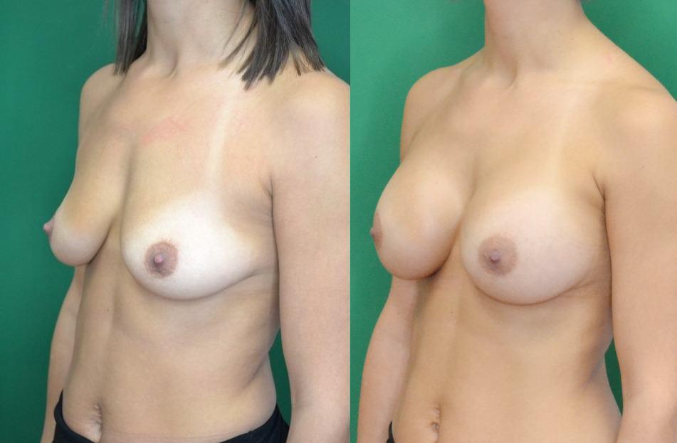 breast augmentation case study