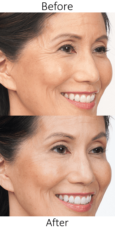 Botox in Northern Va , Ashburn Va , Fairfax County , Loudoun County , One Loudoun