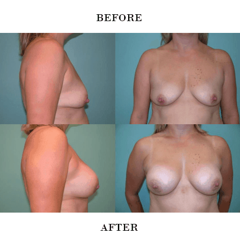 Breast Aumentation Before and After in Ashburn Va , Fairfax Va , One Loudoun
