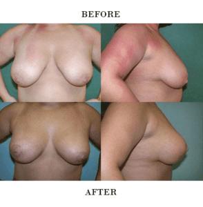 Breast Lift in Northern Va , Ashburn Va , Fairfax County , Loudoun County , One Loudoun
