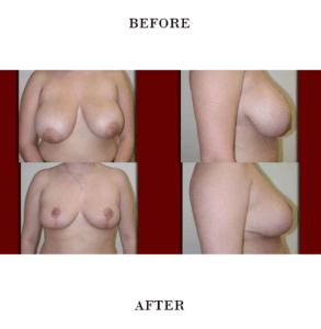 Breast Reduction in Northern Va , Ashburn Va , Fairfax County , Loudoun County , One Loudoun