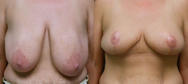Breast Reduction in Northern Va , Ashburn Va , Fairfax County , Loudoun County , One Loudoun