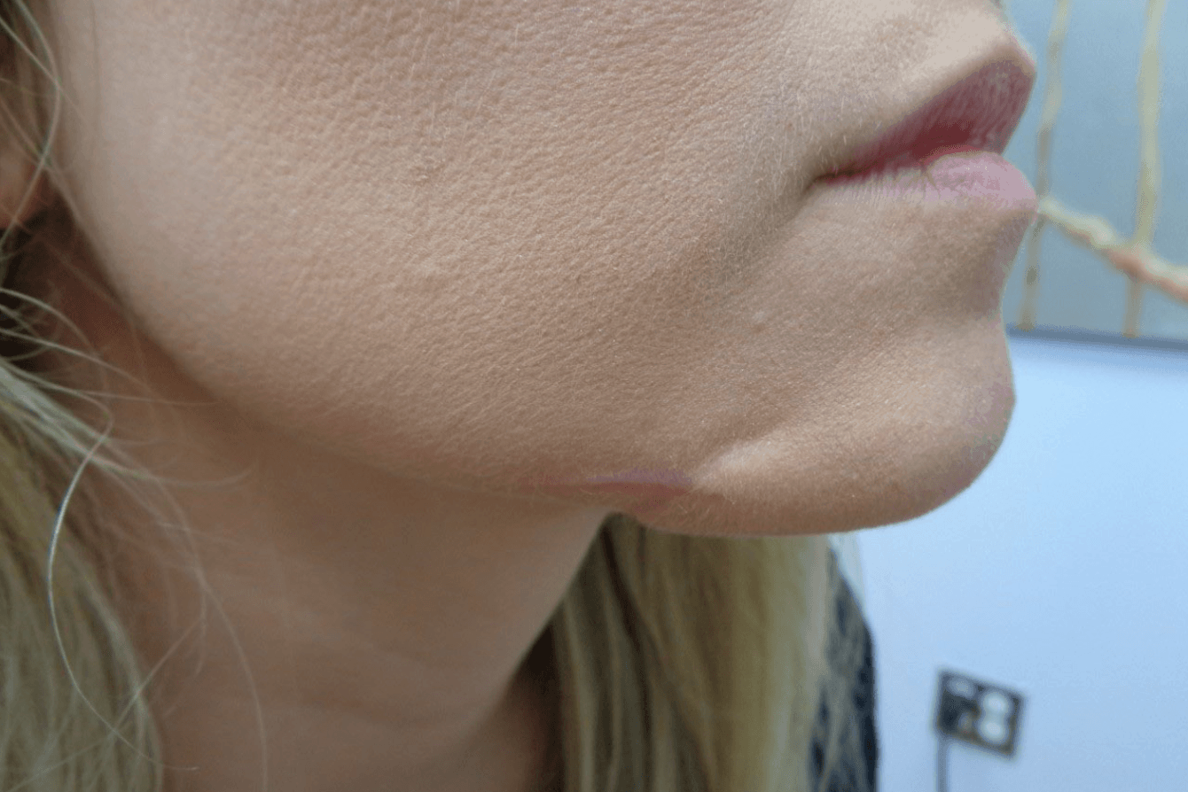 Face Trauma After Chin Reconstruction