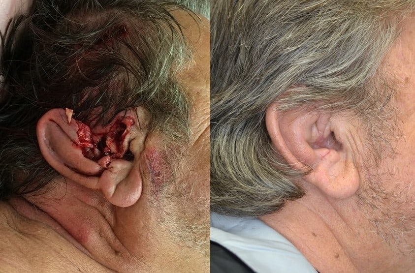Face Trauma Before and After Ear Reconstruction