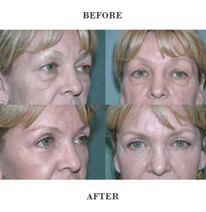 Eyelid Surgery in Northern Va , Ashburn Va , Fairfax County , Loudoun County , One Loudoun