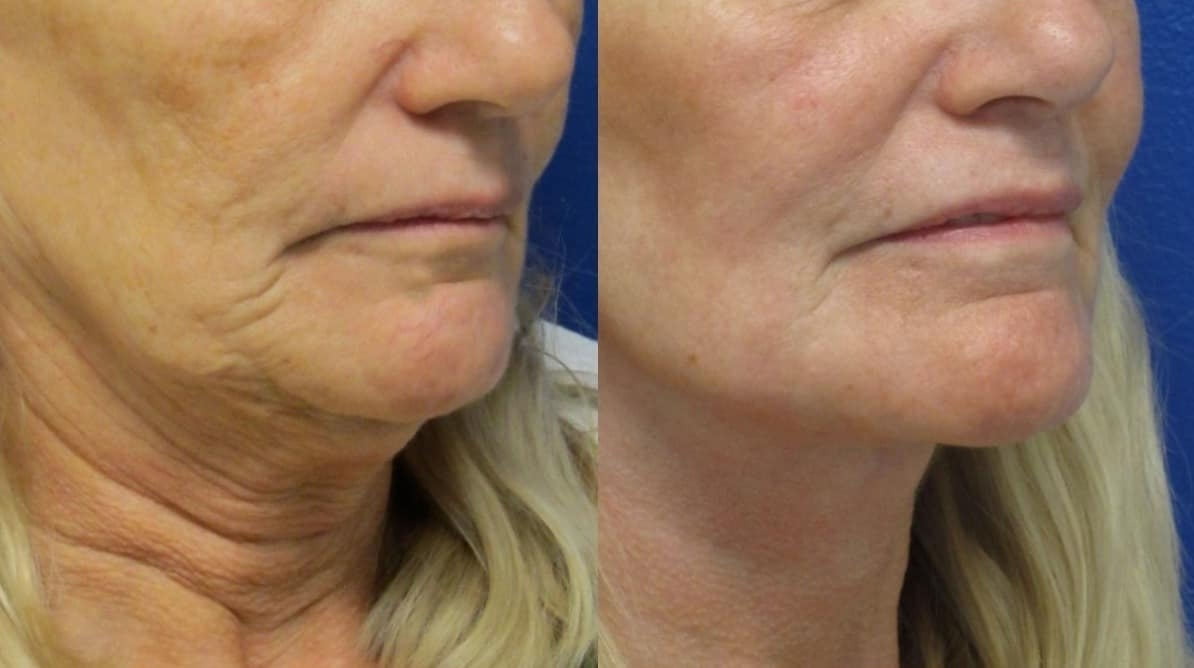 Facelift in Northern Va , Ashburn Va , Fairfax County , Loudoun County , One Loudoun