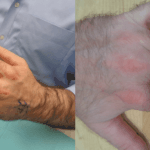 Hand Injury in Northern Virginia