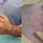 Hand Injury in Northern Virginia