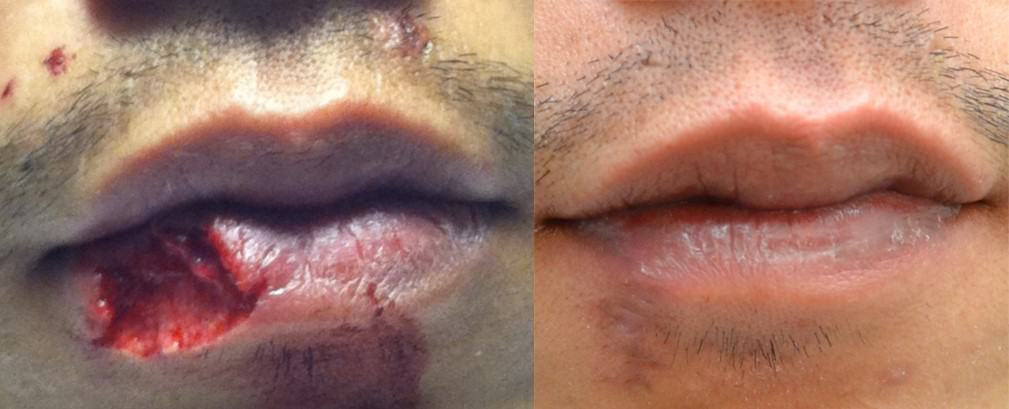 Face Trauma Before and After Lip Reconstruction