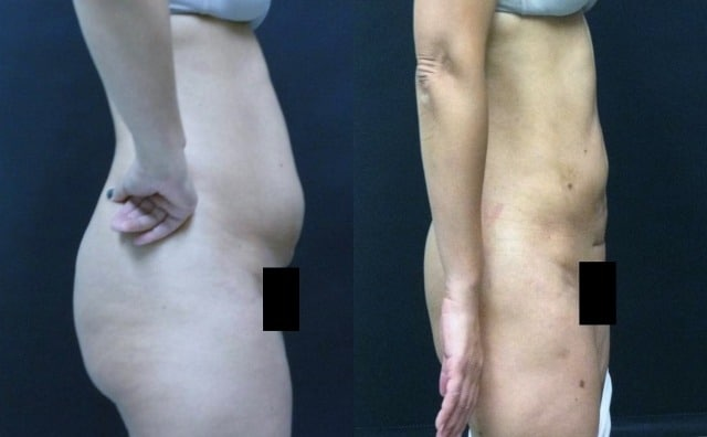 Liposuction in Northern Va , Ashburn Va , Fairfax County , Loudoun County , One Loudoun