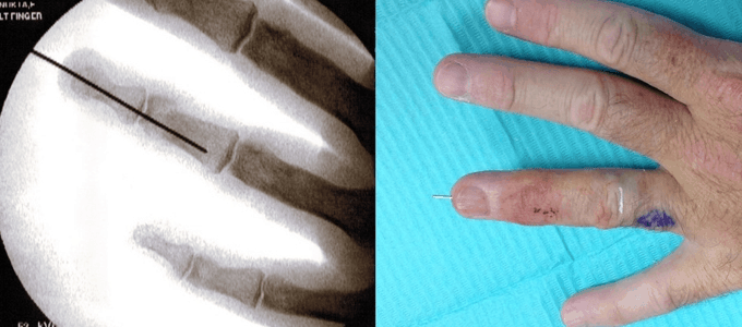 Hand Injury Before and After Pictures by NOVA Plastic Surgery in Northern Va
