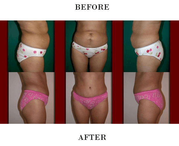 Tummy Tuck in Northern Va , Ashburn Va , Fairfax County , Loudoun County , One Loudoun