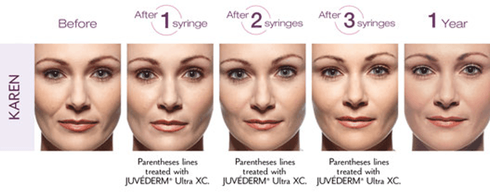 Fillers in Northern Va , Ashburn Va , Fairfax County , Loudoun County , One Loudoun