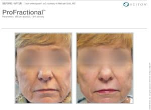 ProFractional laser treatment
