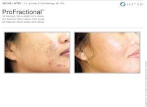 ProFractional laser treatment for acne