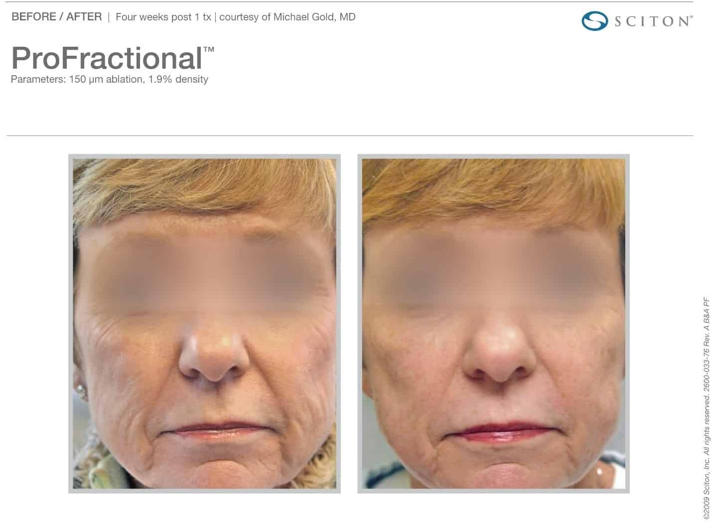 ProFractional Laser Before and After Pictures by NOVA Plastic Surgery in Northern Va