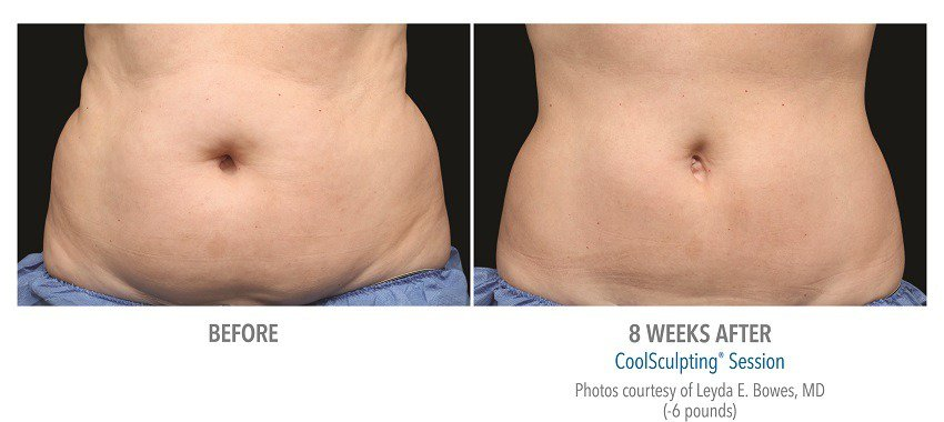 coolsculpting female abdominal surgery