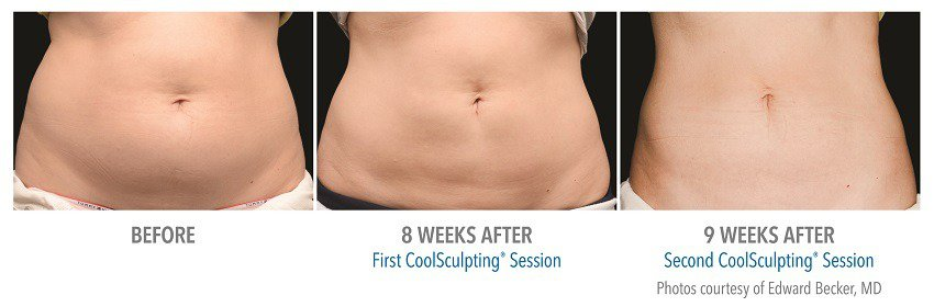 coolsculpting for emale abdomen surgery