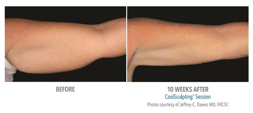 coolsculpting arm surgery