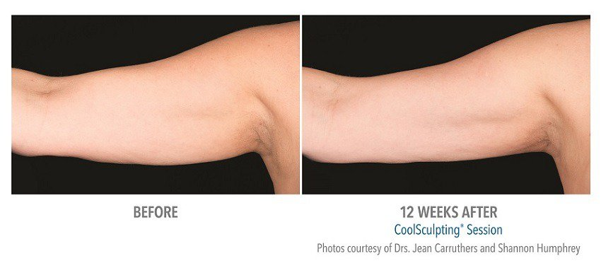 coolsculpting for your arms
