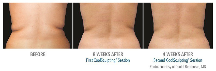coolsculpting female flank surgery