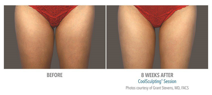 coolsculpting before and after photos inner thighs