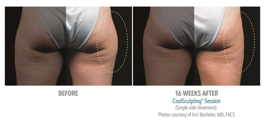 coolsculpting for outer thighs