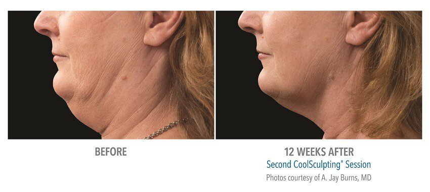 coolsculpting submentum before and after