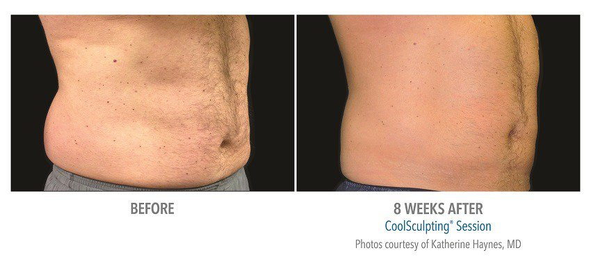 coolsculpting for male abdomen surgery
