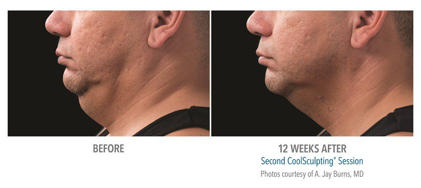 coolsculpting for male submentum
