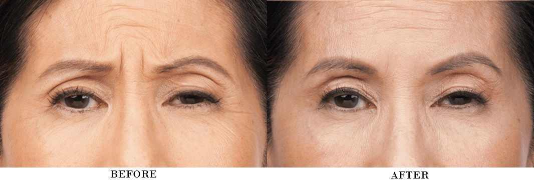 4 Benefits of Botox (Before/After Photos)