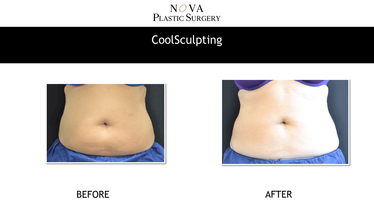Real Before/After photos CoolSculpting