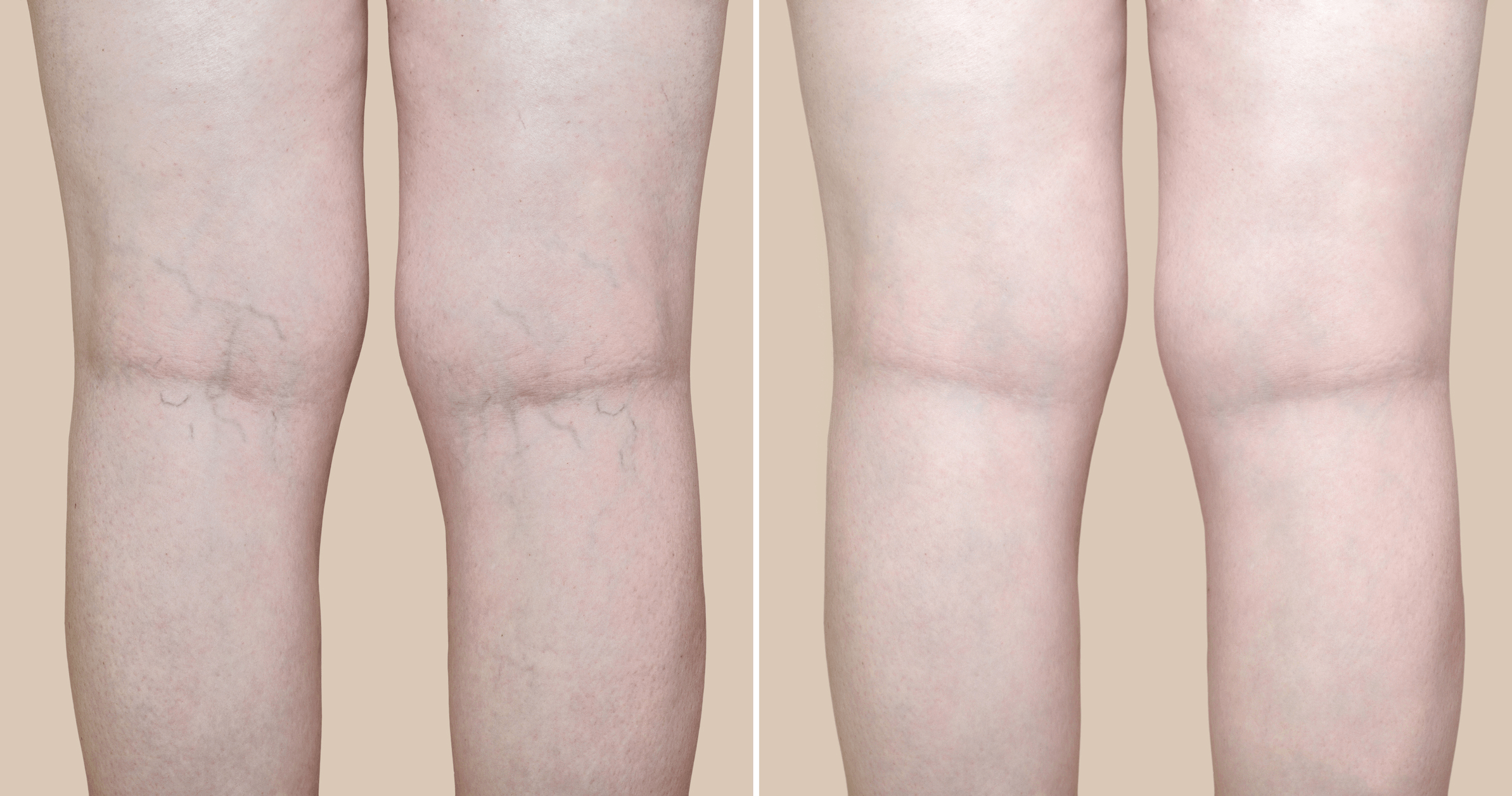Spider Veins on legs before and after